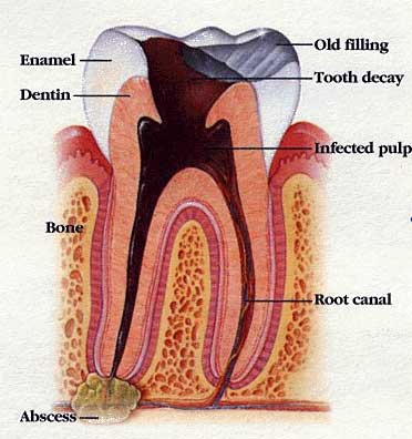 big_root_canal.jpg