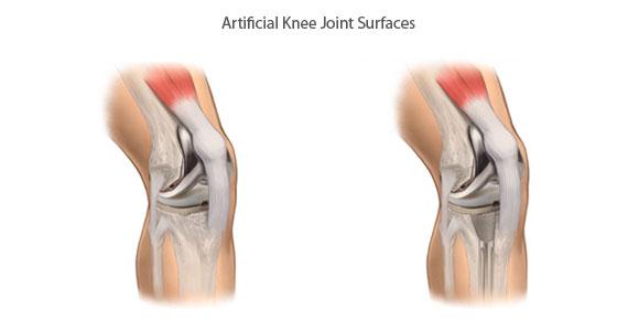 artificial-knee-joint.jpg