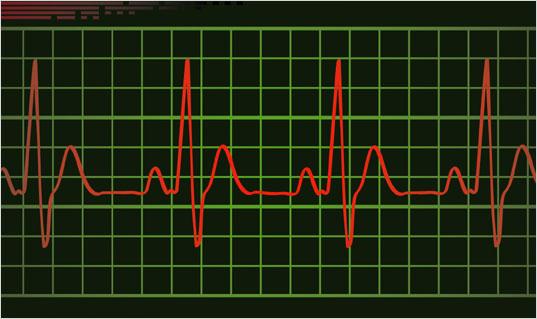 pulse-top.jpg