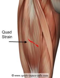 quad-strain.jpg