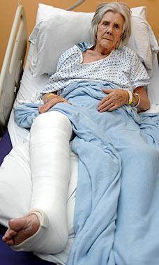 broken.leg.jpg