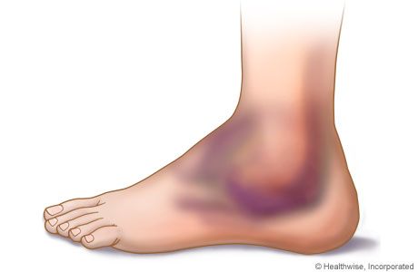 foot-11.jpg