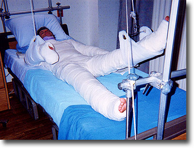 FULL_BODY_CAST1.jpg