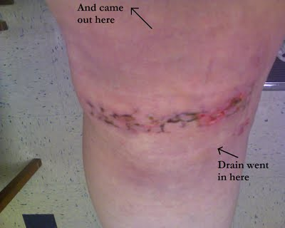 knee-drain-placement-755395.JPG.jpeg