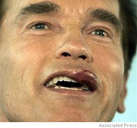 schwarzenegger_fat_lip.jpg