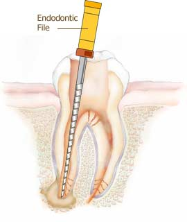Root_canal_treatment_3.jpg