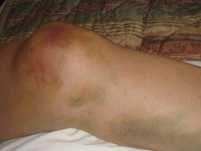 bruised.knee.jpg
