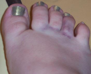 bruised.foot.jpg