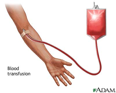 blood-transfusion.jpg