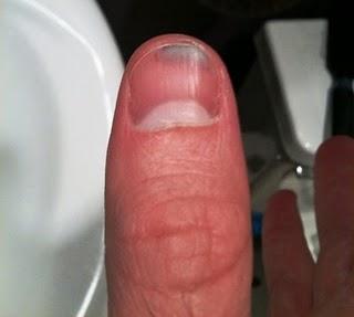 bruised thumb.jpg